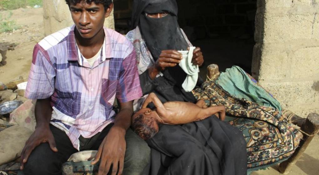 Imágenes escalofriantes de la hambruna que acecha a Yemen
