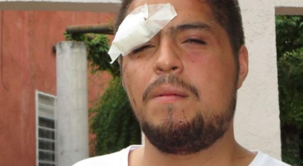 Condenan a dos policías por golpear a un joven en el festival de Jesús María