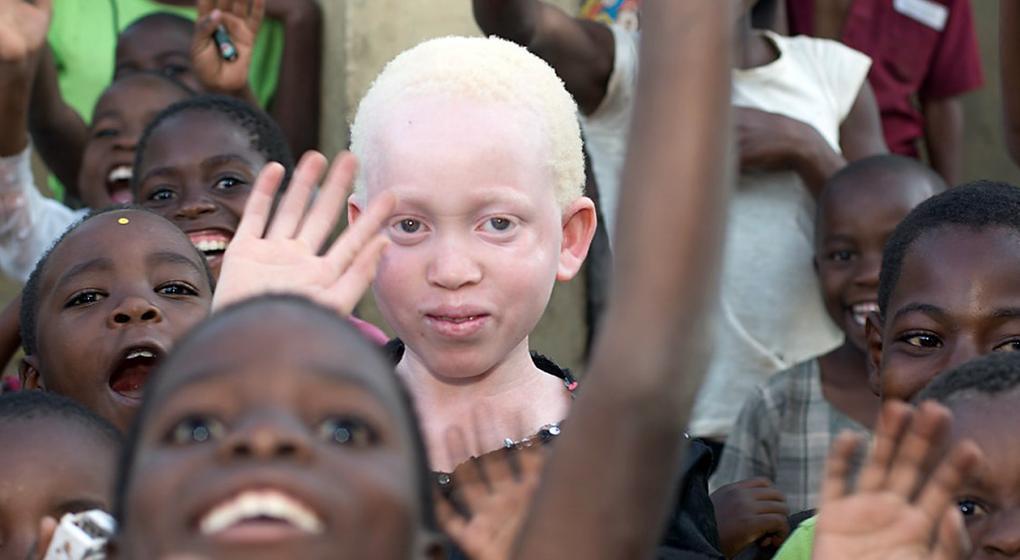 Tribu de fantasmas. El drama de ser albino en África