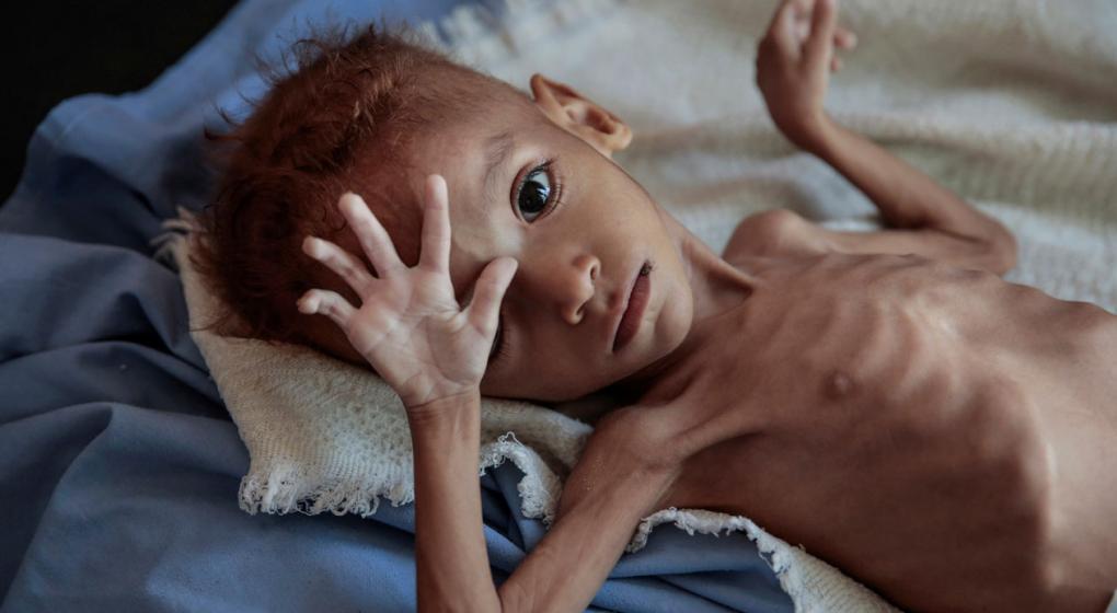 Murió Amal, símbolo del hambre en Yemen